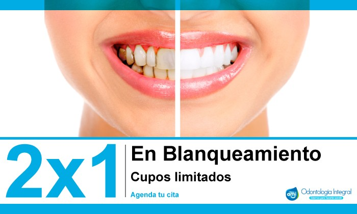Blanqueamiento 2×1