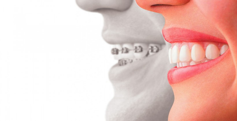 Bono Ortodoncia