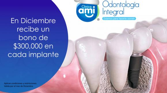 Bono de Implantes