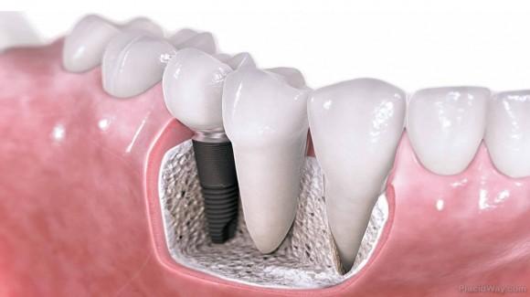 Bono Implantes