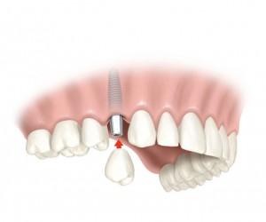 funda-sobre-implante-imoi